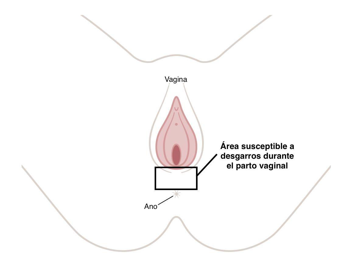 nombre del hijo del dolor perineal