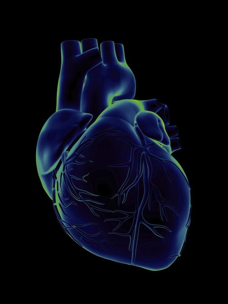 que es una miocardipatía