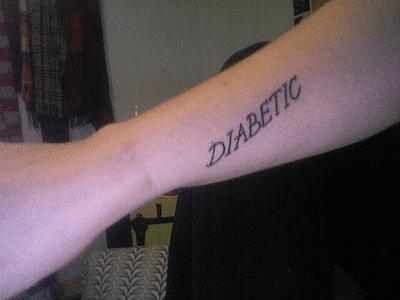 Tatuajes Con Fecha De Caducidad Salud El Mundo