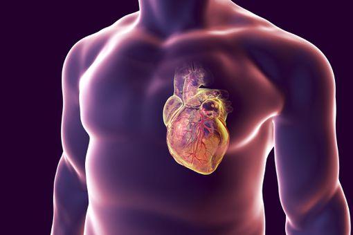 Ataque al corazón, ilustración conceptual