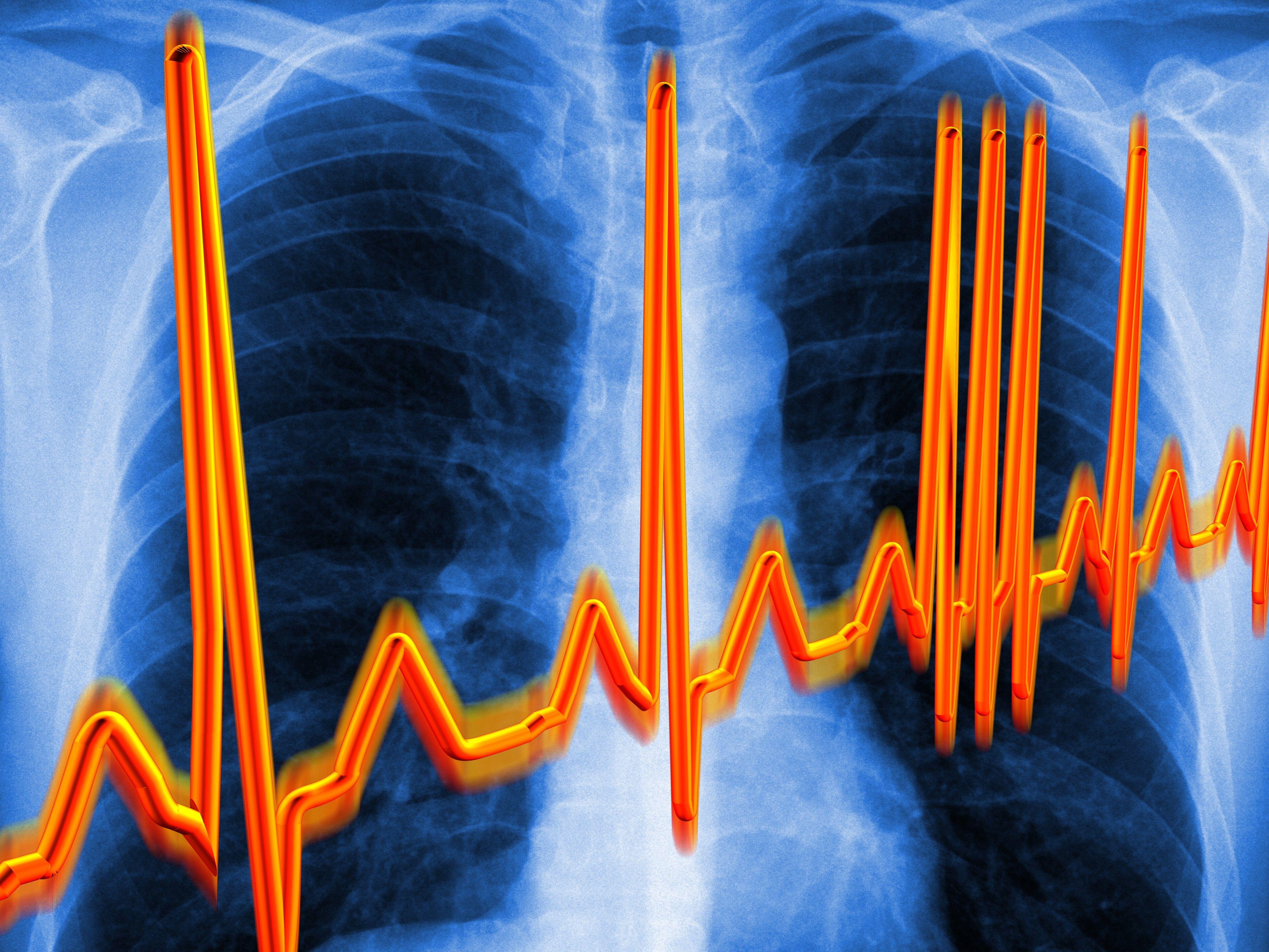 Latidos cardíacos irregulares y luego dolor de cabeza