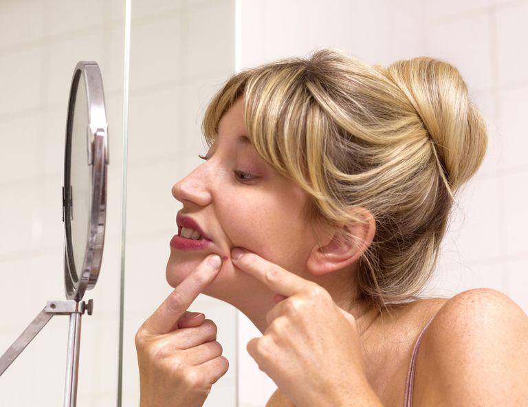 Combatir el acné con plantas medicinales