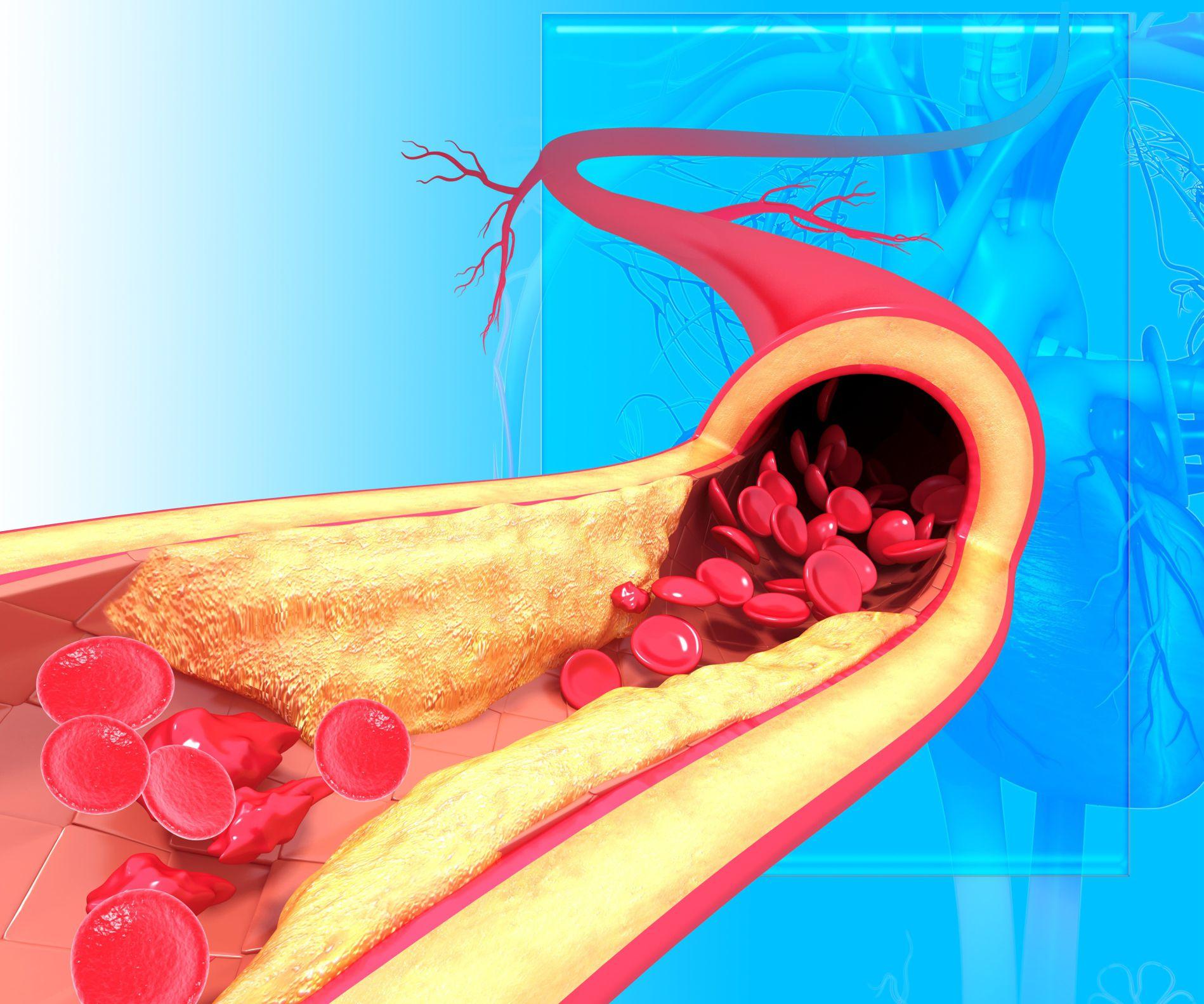 Aterosclerosis aórtica: síntomas y tratamiento