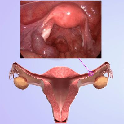 3 Semanas De Embarazo