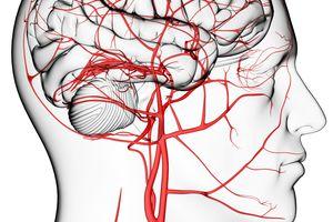 Diferencias derrame cerebral e infarto cerebral