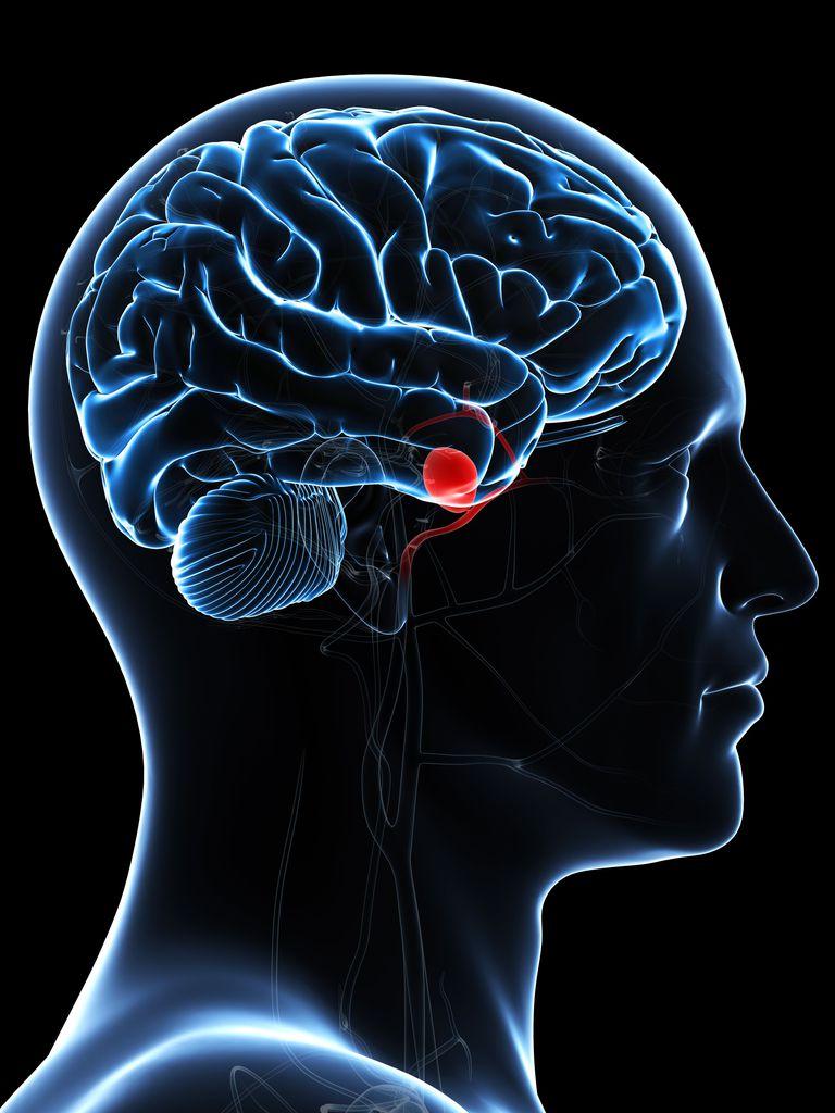 Aneurisma cerebral sintomas causas y tratamiento