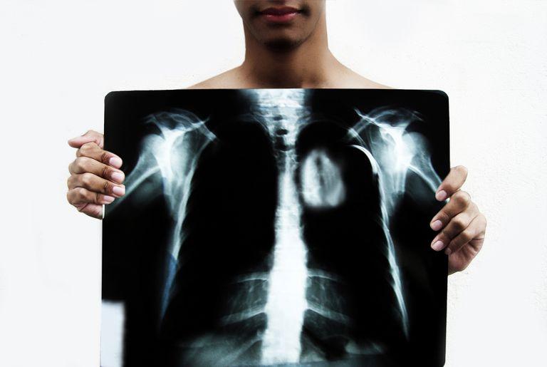 Radiografía de corazón