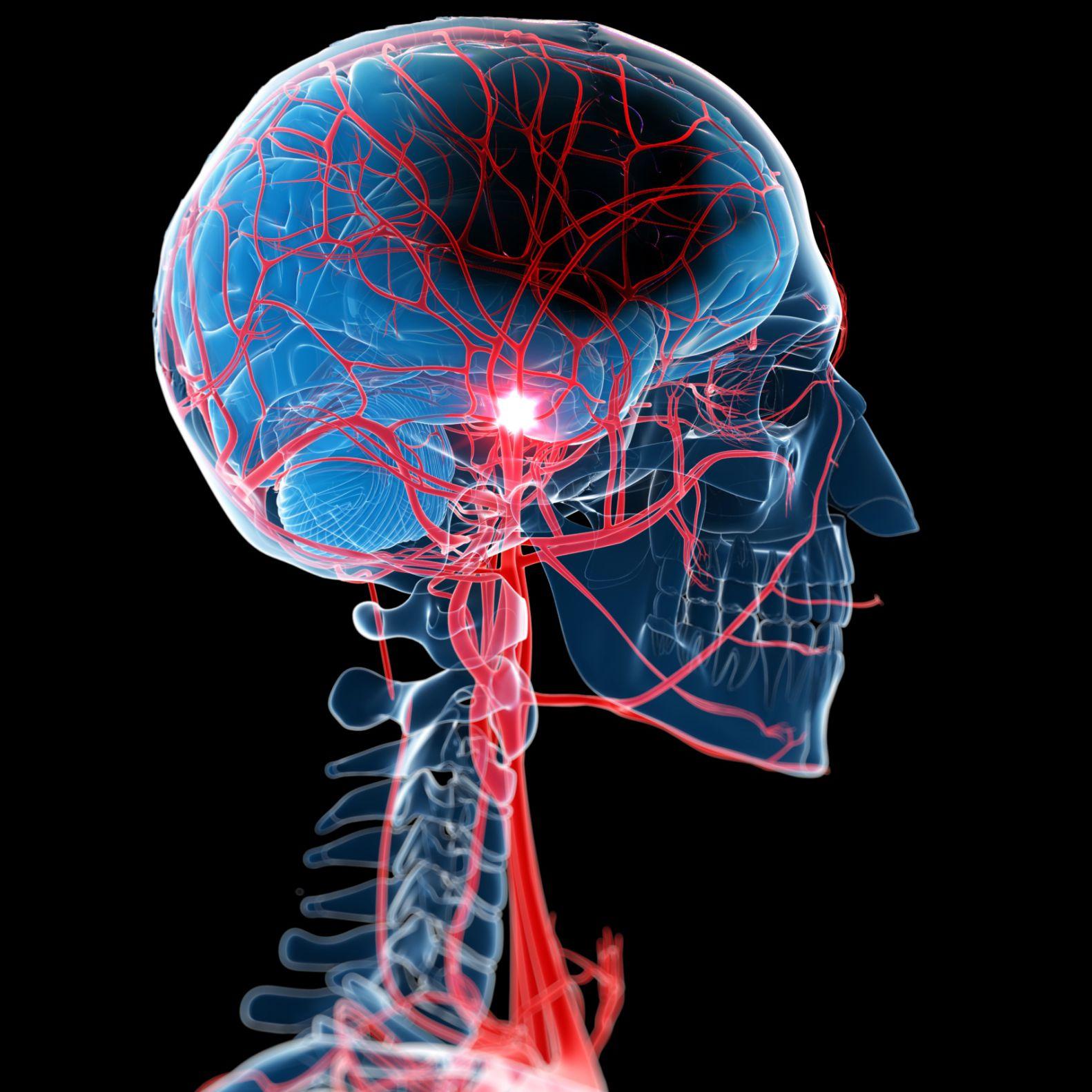 Sube la presión arterial cuando tiene un derrame cerebral