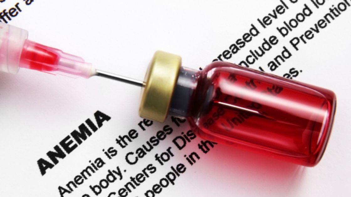 anemia por daño de hierro y sus síntomas