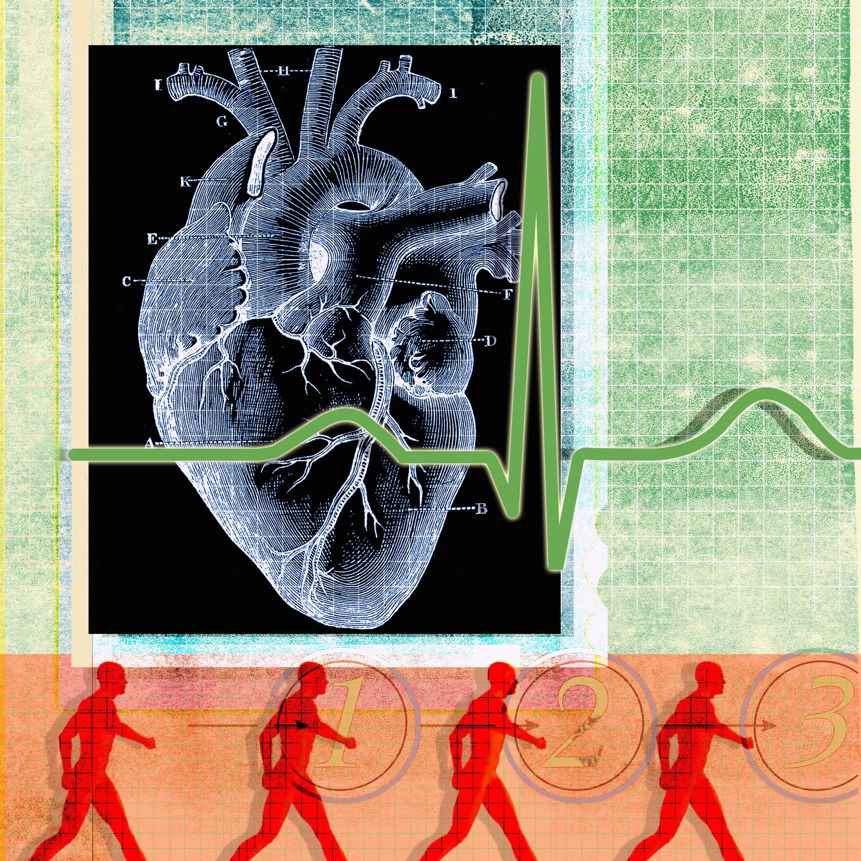 Htn y enfermedades del corazón