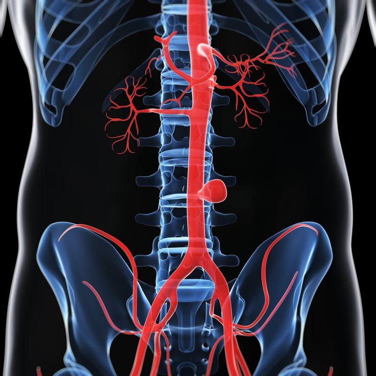 diseccion aortica, diseccion de la aorta, sintomas, causas y tratamiento diseccion aortica, aneurisma de la aorta
