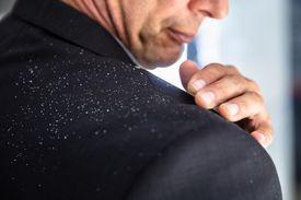 Un hombre se quita la caspa del hombro