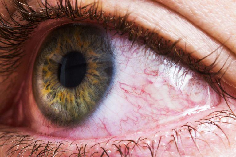 que hacer ojos irritados