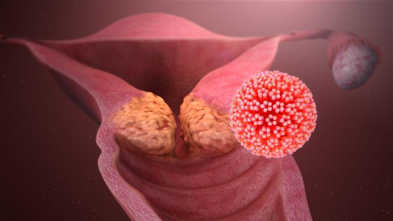 El VPH está causando cáncer cervical