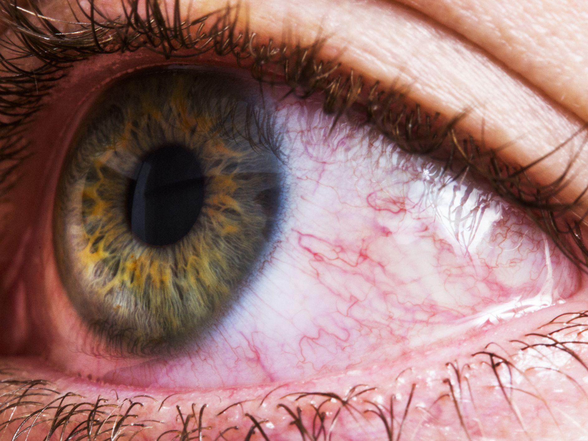 herpes ojos tratamiento