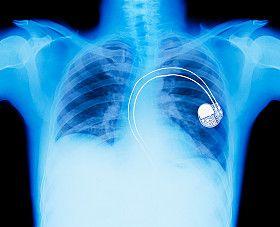 marcapasos, experiencia con marcapasos, marcapasos cardiacos, marcapasos tipos, marcapasos corazon,