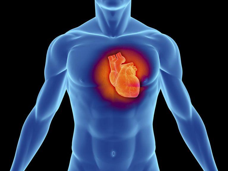 Cómo se diagnostica un infarto