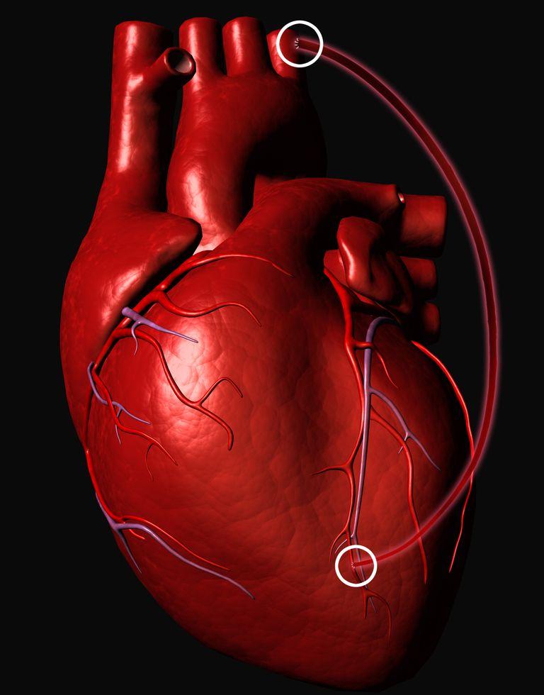 Qué es un bypass coronario