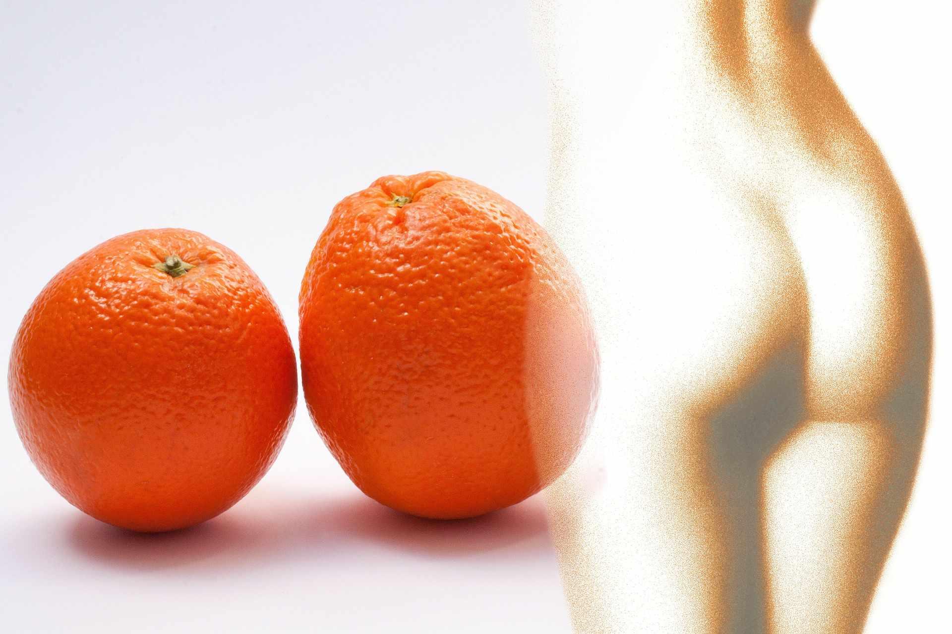 Celulitis-piel-de-naranja-stux-pixabay.jpg