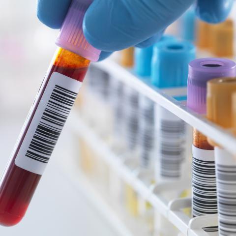 examenes complementarios en tratamiento de diabetes