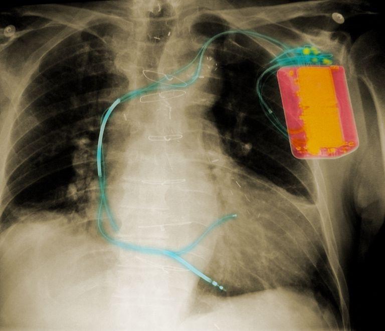 Qué es un desfibrilador automático implantable