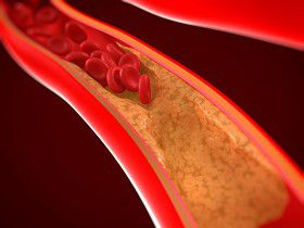 colesterol, colesterol HDL, colesterol LDL, perfil lipidico, causas colesterol,