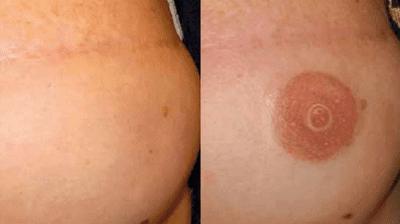Eliminación De Tatuajes Con Láser Preguntas Frecuentes