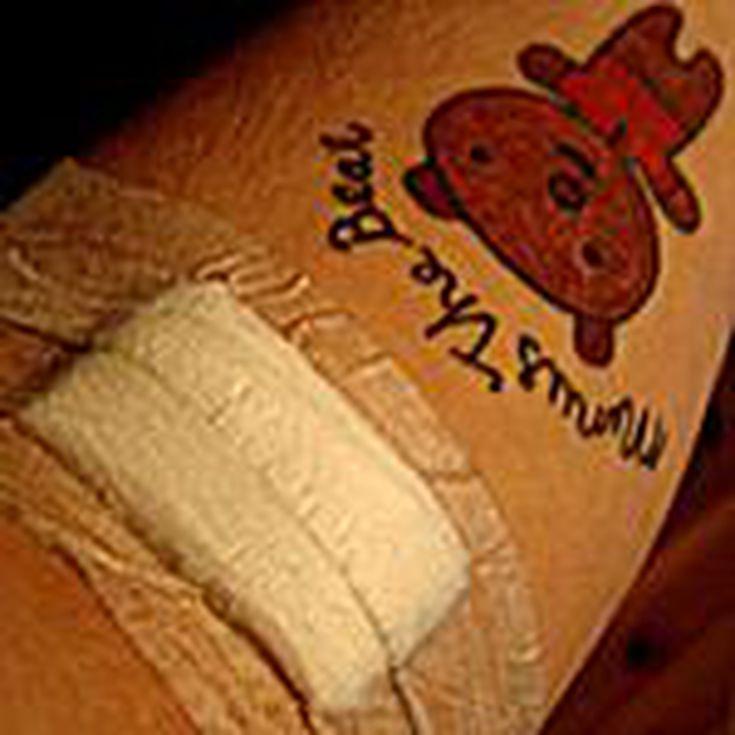 10 Cuidados Del Tatuaje Para Prevenir Infecciones